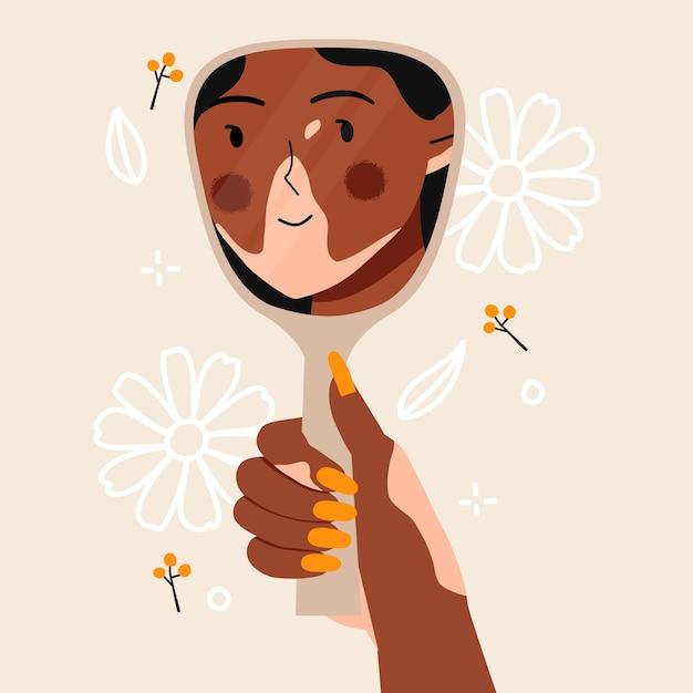 Vitiligo frau sieht sich im spiegel mit schönen blumen lächelnd. Premium Vektoren