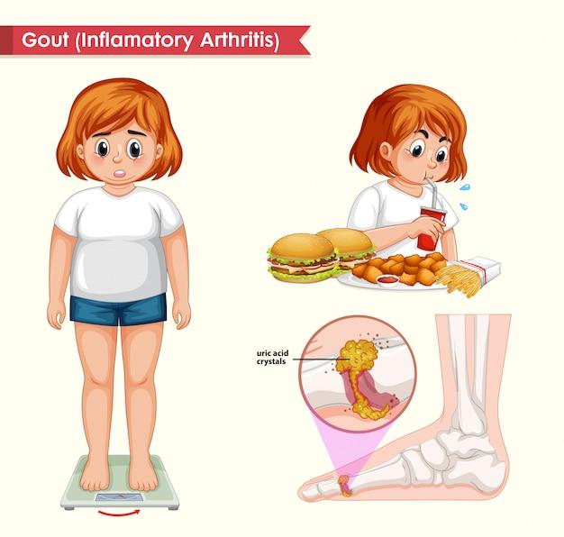 Wissenschaftliche medizinische illustration der gichtarthritis Kostenlosen Vektoren