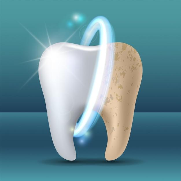 Zahn vor und nach dem bleaching reinigen und verschmutzen Premium Vektoren