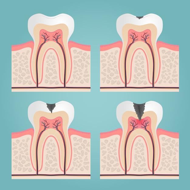 Zahnanatomie und beschädigung, geschnittene zähne in der zahnfleischvektorillustration Kostenlosen Vektoren