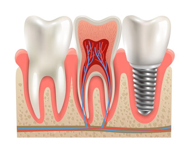 Zahnimplantat-anatomie-nahaufnahme-modell Kostenlosen Vektoren