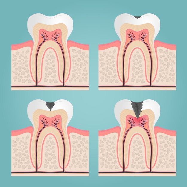 Anatomia e danos do dente, corte os dentes na ilustração vetorial de gengivas Vetor grátis