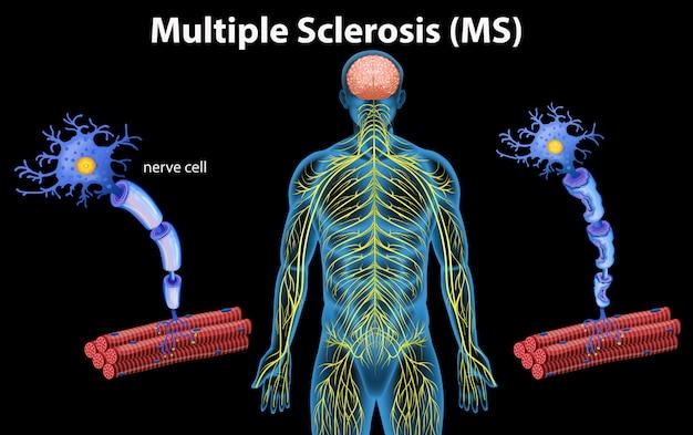 Anatomia humana da esclerose múltipla Vetor Premium