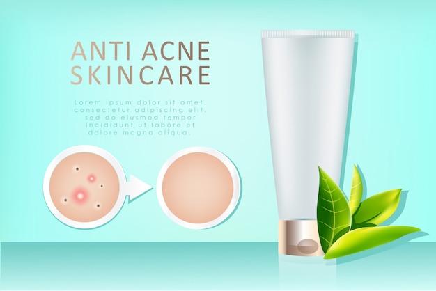 Anúncio de creme anti-acne realista Vetor Premium