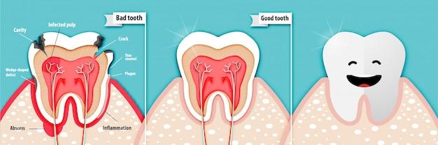 Arte de papel de ciência de saúde sobre um dente ruim e um dente bom Vetor Premium