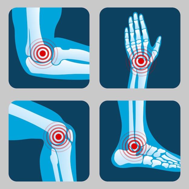Articulações humanas com anéis de dor. infográfico de artrite e reumatismo. botões de vetor de app médico Vetor Premium