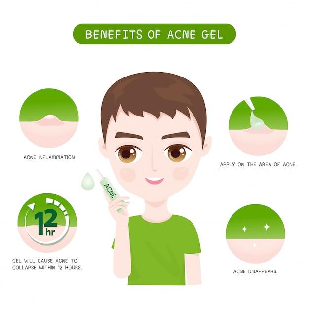 Benefícios do acne gel men Vetor Premium