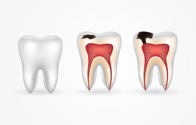 Cárie dentária e dente saudável. cárie superficial; cárie profunda, cárie do esmalte e dentina, periodontite. dente 3d realista por dentro e por fora. Vetor Premium