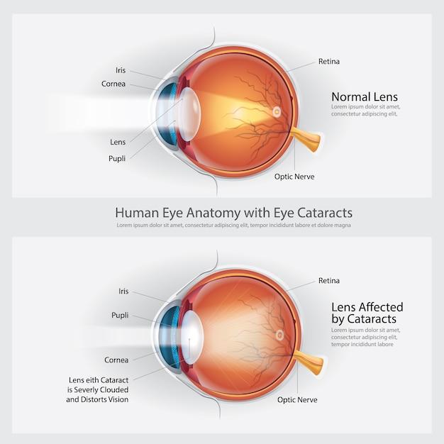 Cataratas: transtorno da visão e anatomia da visão normal dos olhos Vetor Premium