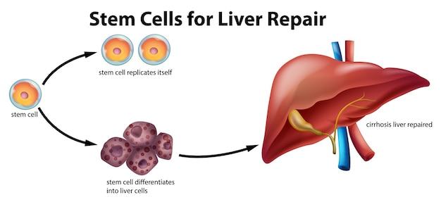 Células-tronco para reparo do fígado Vetor grátis
