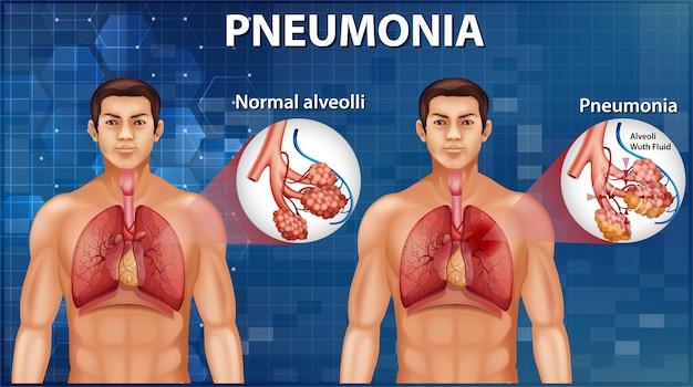 Comparação de alvéolos saudáveis e pneumonia Vetor grátis