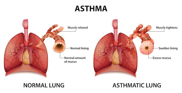 Comparação de pulmão saudável e pulmão asmático Vetor grátis