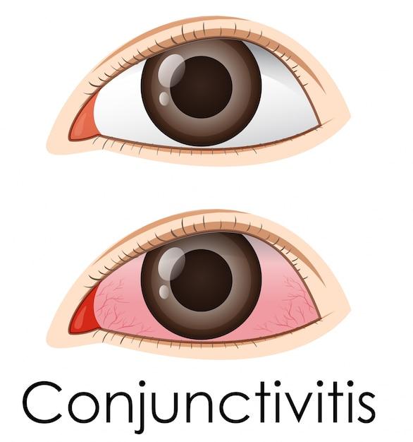 Conjuntivite nos olhos humanos Vetor Premium