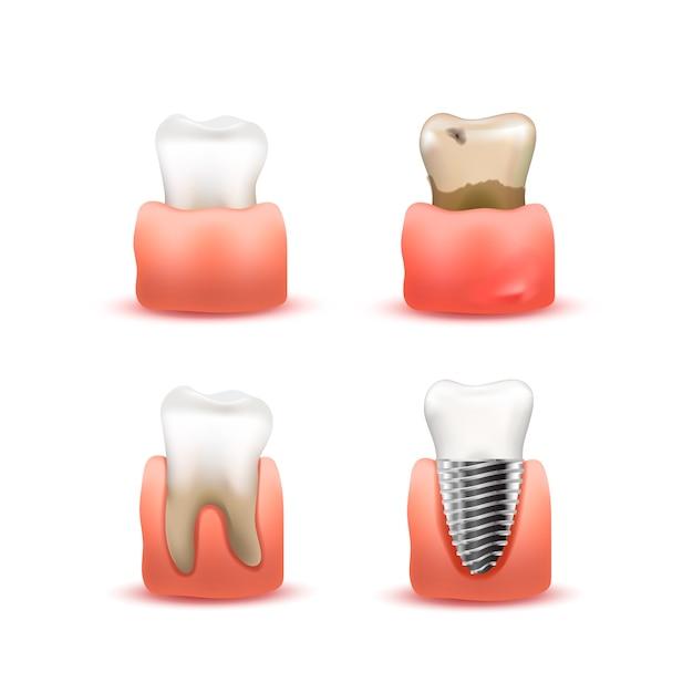 Conjunto de dente nas gengivas em branco Vetor Premium