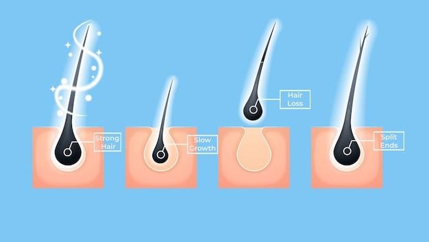 Conjunto de diferentes problemas de cabelo e ilustrações de tratamento de salão profundo. Vetor Premium