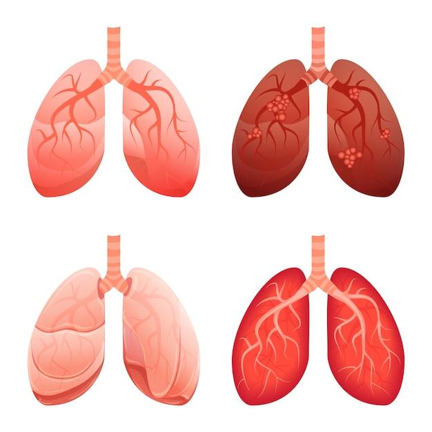 Conjunto de ícones de pulmão, estilo cartoon Vetor Premium