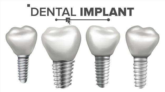 Conjunto de implantes dentários Vetor Premium