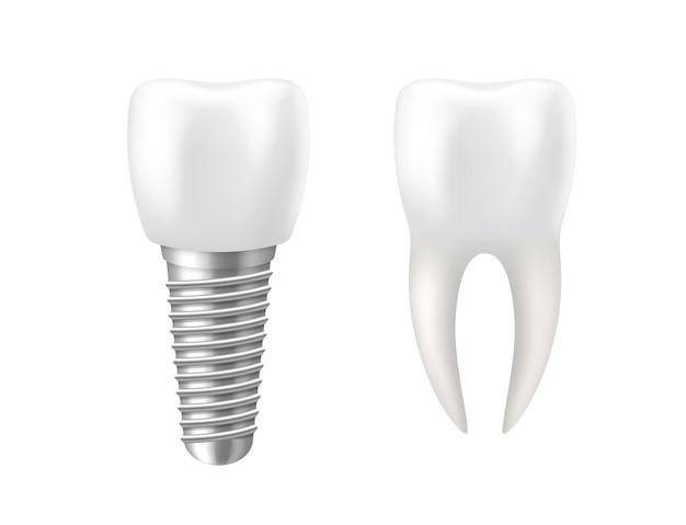 Dente e implante dentário realistas para estomatologia Vetor Premium