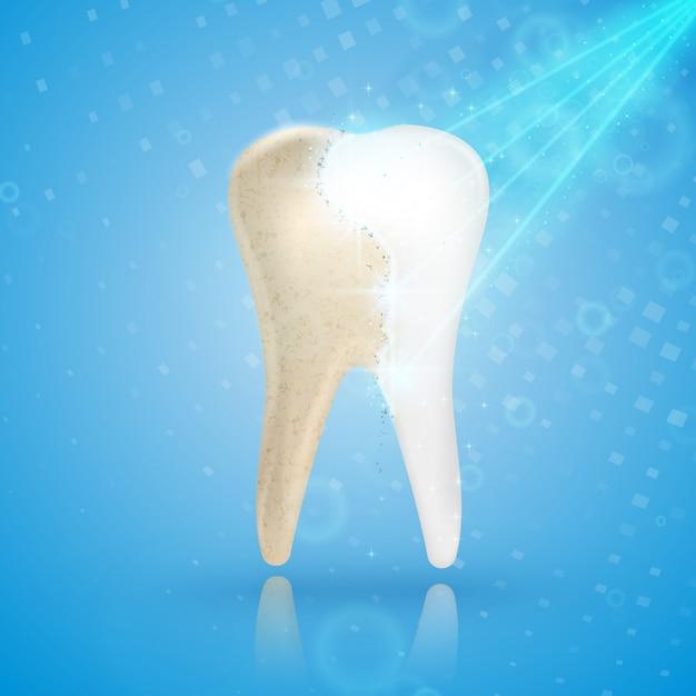 Dentes branqueamento conceito 3d Vetor Premium