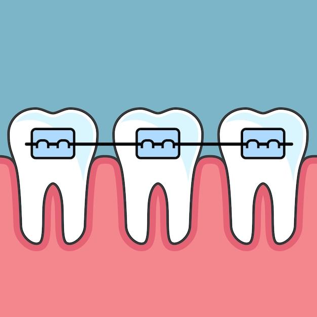 Dentes com aparelho dentário - arranjo dentário Vetor Premium