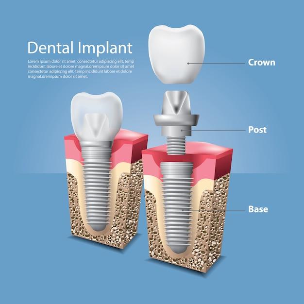 Dentes humanos e ilustração vetorial de implante dentário Vetor Premium