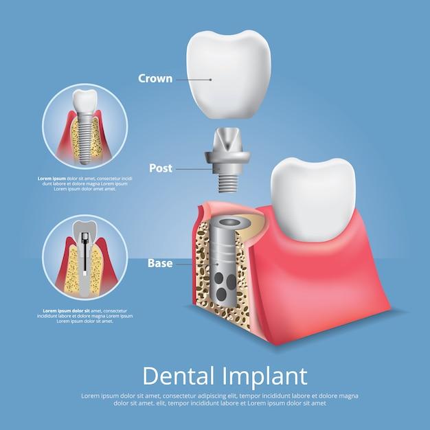 Dentes humanos e implantes dentários Vetor Premium