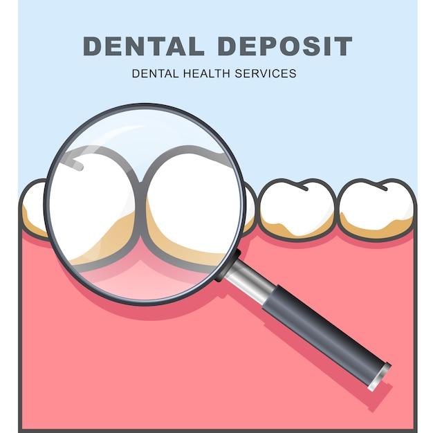 Depósito dentário - fileira de dente sob lupa Vetor Premium