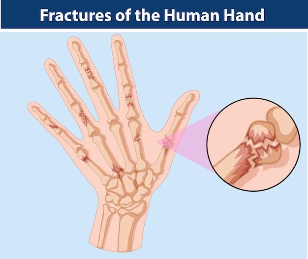 Diagrama de fraturas na mão humana Vetor Premium
