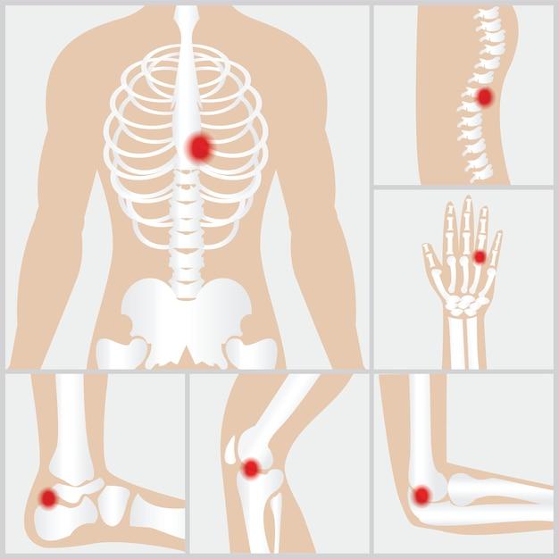 Doença das articulações e ossos Vetor Premium