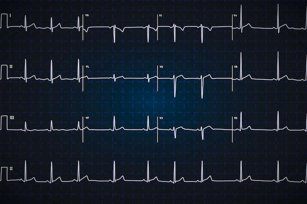 Eletrocardiograma humano típico, gráfico branco sobre fundo azul escuro Vetor Premium