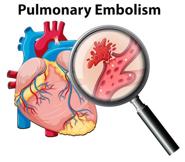 Embolia pulmonar por anormalidade humana Vetor Premium