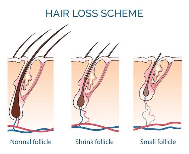Esquema de queda de cabelo. perda de cabelo, problema de crescimento do cabelo, saúde do cabelo. ilustração vetorial Vetor grátis