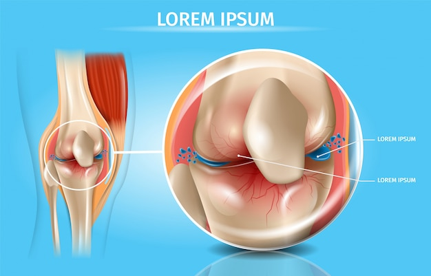 Esquema médico de vetor realista de osteoartrite Vetor Premium