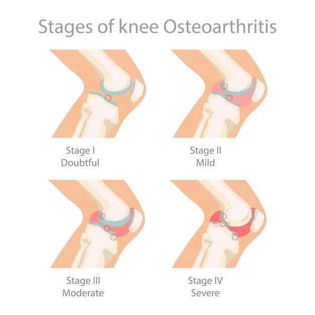 Estágios da osteoartrite do joelho. Vetor Premium