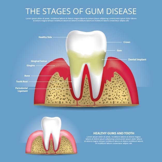Estágios de dentes humanos de ilustração de doença de goma Vetor Premium