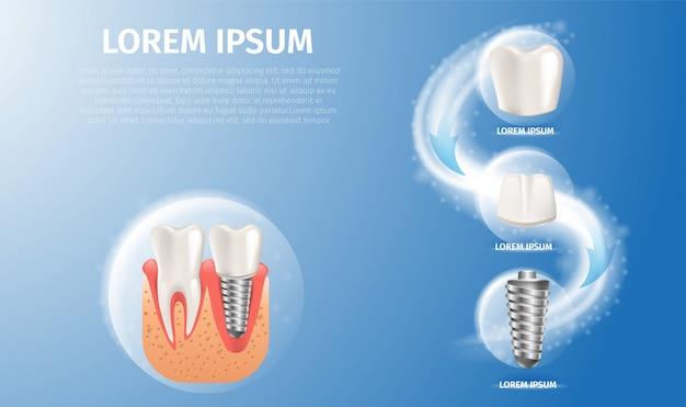 Estrutura de imagem realista do implante dentário Vetor Premium