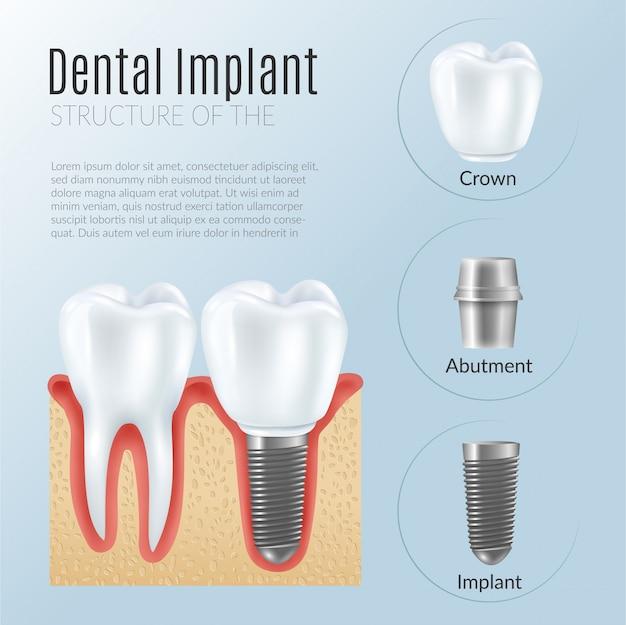 Estrutura de infográficos de próteses dentárias Vetor grátis
