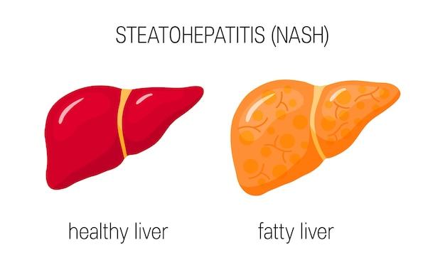 Fígado saudável e gordo em estilo simples. Vetor Premium