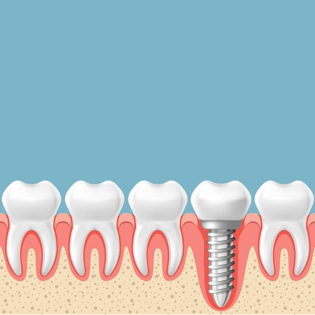 Fileira de dentes com implante dentário - esquema de prótese dentária, corte de gengiva Vetor Premium