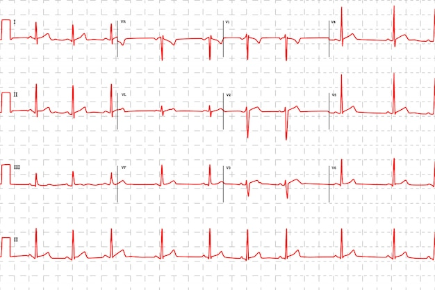 Gráfico de eletrocardiograma humano típico, vermelho com marcas Vetor Premium