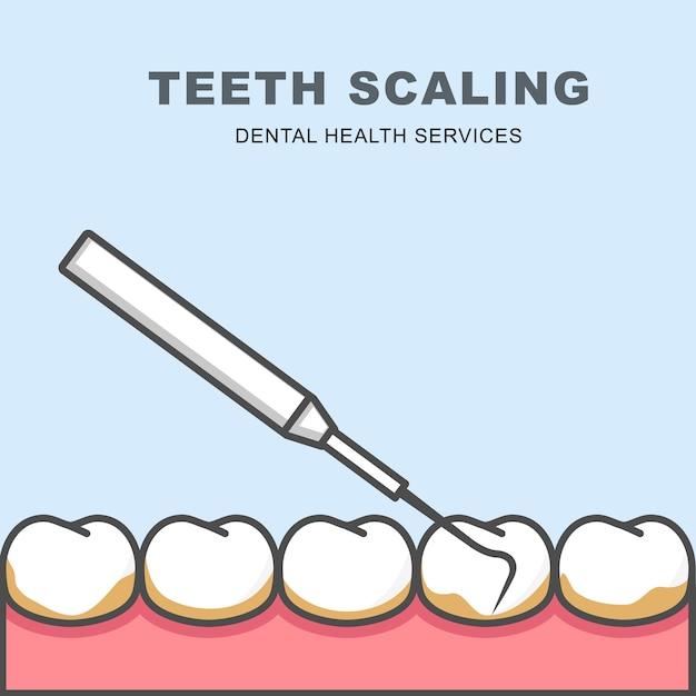 Ícone de descamação do dente - fileira de dente, limpeza com sonda periodontal Vetor Premium