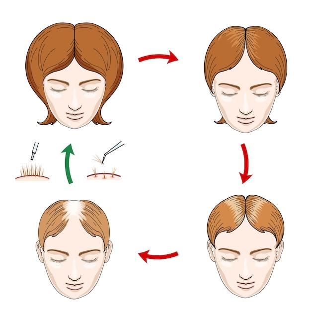 Ícones de transplante de cabelo e perda de cabelo feminino. mulher com queda de cabelo, cabelo cuidado, cabeça feminina, couro cabeludo humano, cabelo em crescimento, ilustração vetorial Vetor grátis