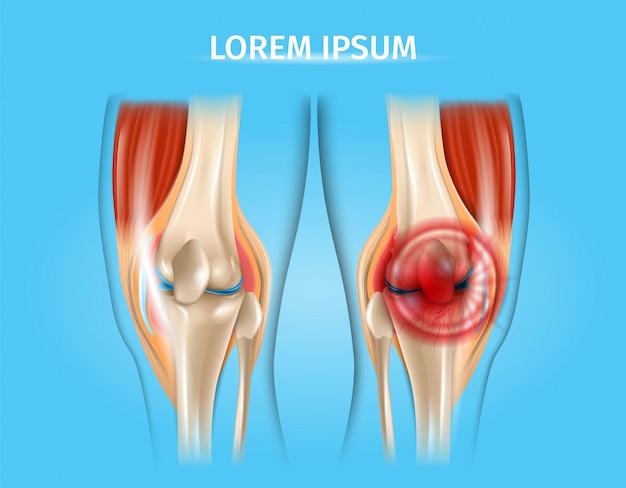 Ilustração anatômica do vetor realista de dor no joelho Vetor Premium