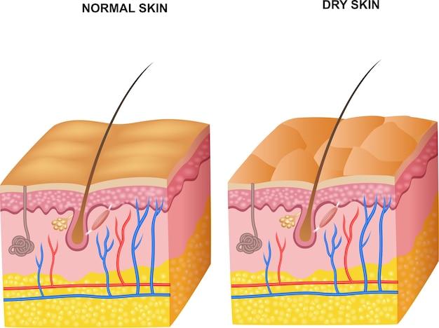 Ilustração das camadas de pele normal e pele seca Vetor Premium