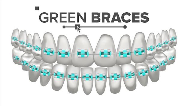 Ilustração de dentes com aparelho de metal Vetor Premium