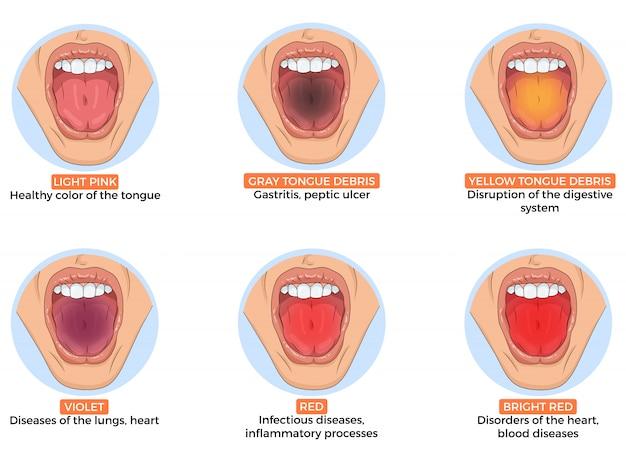Ilustração de diagnóstico de doenças diferentes pela cor da língua Vetor Premium