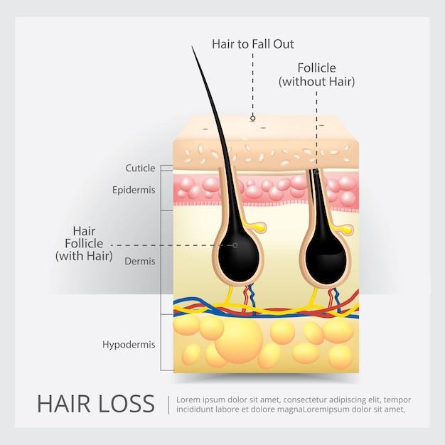 Ilustração de vetor de estrutura de perda de cabelo Vetor Premium