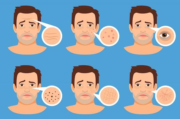 Ilustração do vetor dos problemas de pele do homem. rosto masculino com espinhas e manchas escuras, rugas e acne Vetor Premium