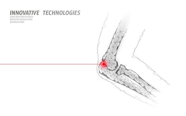 Ilustração em vetor modelo 3d articulação humana cotovelo. projeto poli baixa tecnologia futura cura tratamento da dor. Vetor Premium