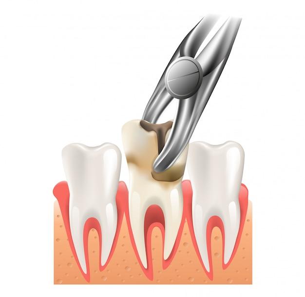 Ilustração realista cirurgia dentária em vetor 3d Vetor Premium